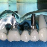 melville-dental-implants